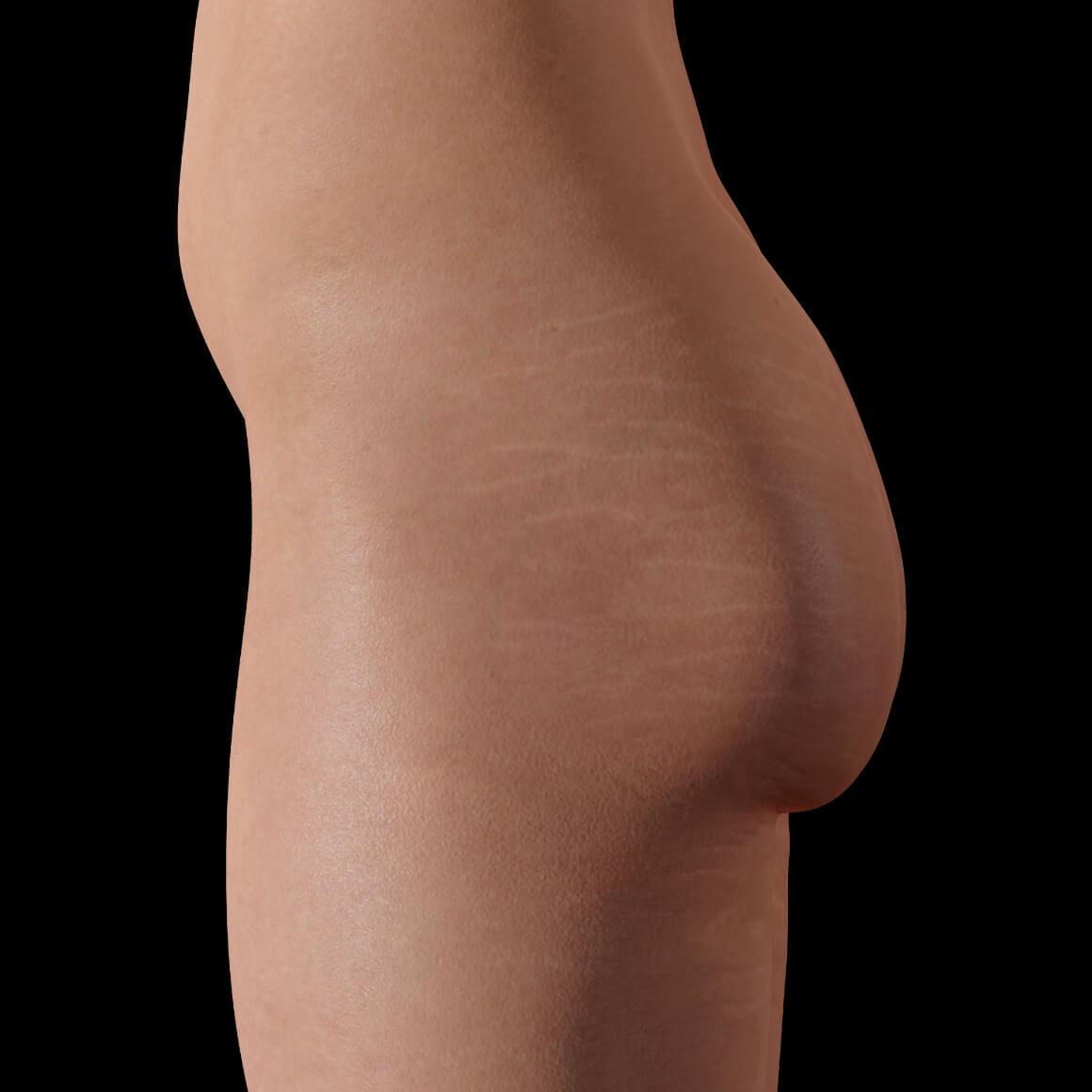 Une patiente de la Clinique Chloé de côté après des traitements de PRP contre les vergetures sur les fesses et les cuisses