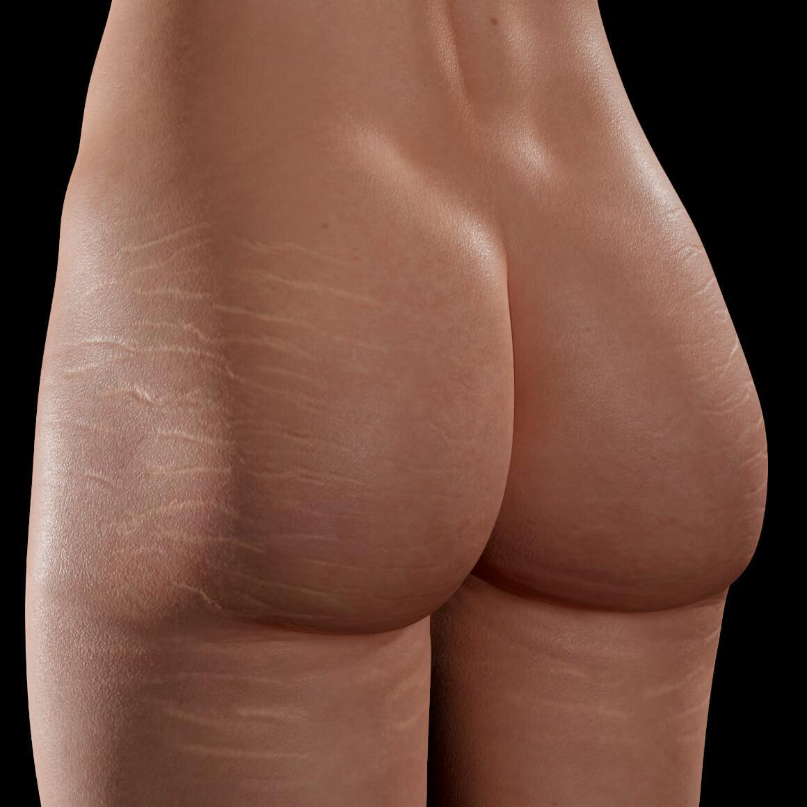 Patiente de la Clinique Chloé positionnée en angle ayant des vergetures sur les fesses et les cuisses